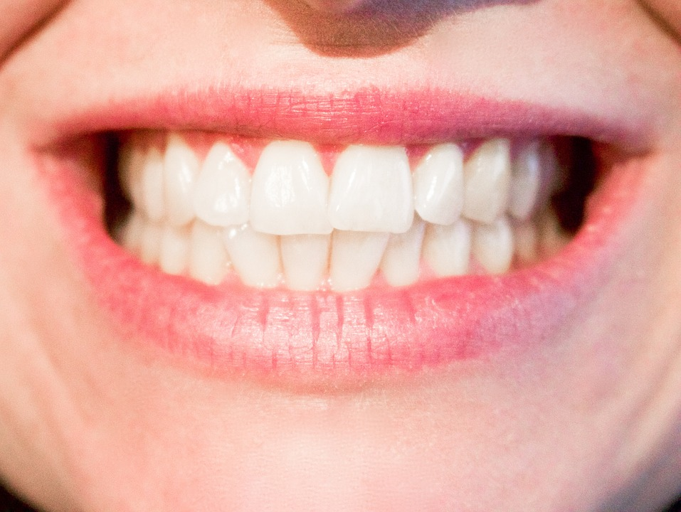 How to Get the Million-Dollar Smile